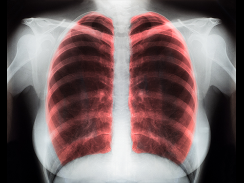 copd blog